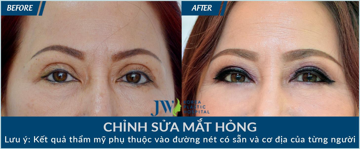 Cắt mí mắt không hề đơn giản và cần phòng tránh những biến chứng