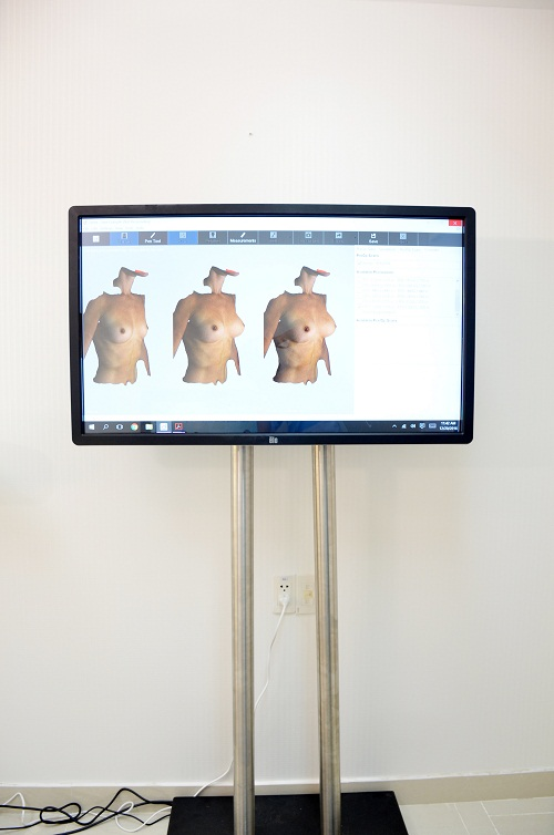 Trung tâm thẩm mỹ nâng ngực nano chip 3d motiva tại Sài Gòn
