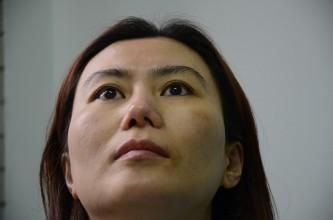 Vẹo trụ vách ngăn mũi sau 5 lần phẫu thuật hỏng