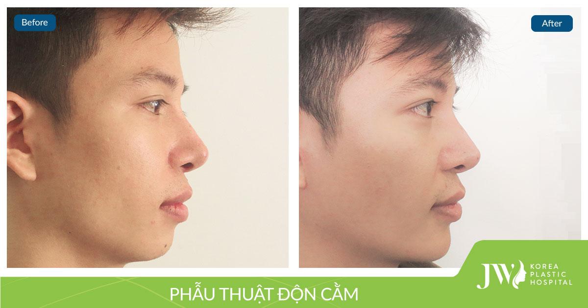Nguyễn-Ngọc-Anh---13.6 (1)
