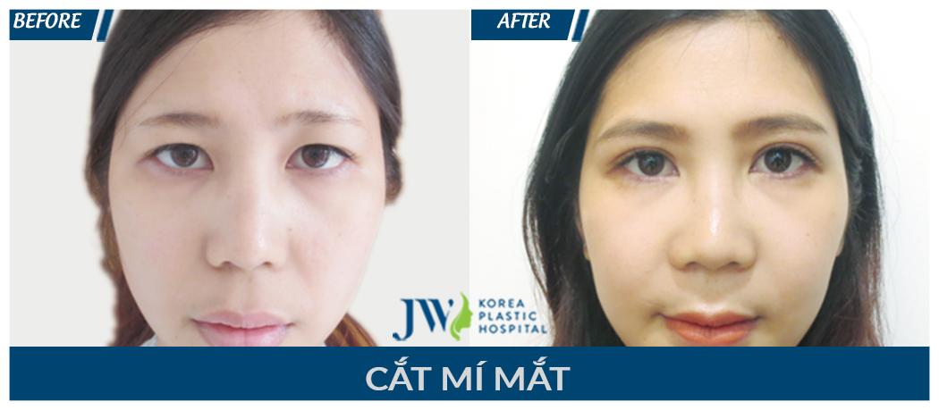 cat-mi-mat-7
