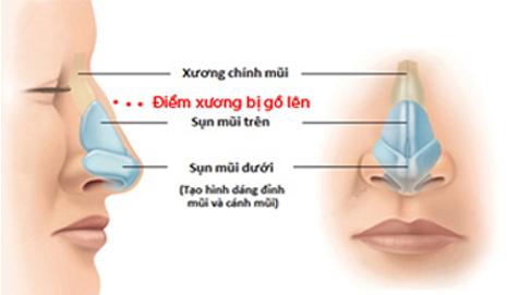 Hình ảnh mô phỏng mũi bị gồ