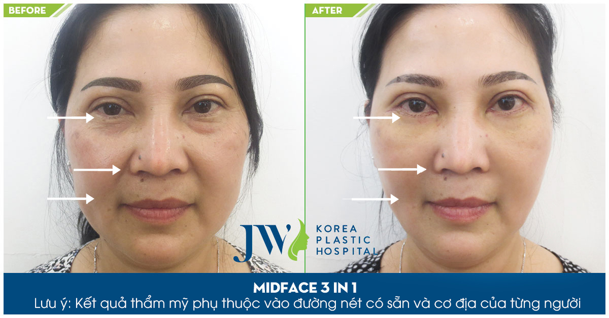 midface-3-in-1