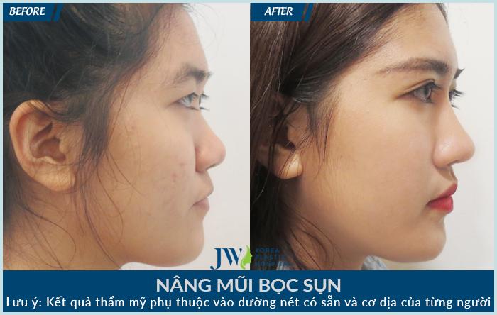 khách hàng nâng mũi bọc sụn tại bệnh viện thẩm mỹ JW