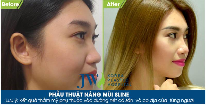 nâng mũi S line hoàn toàn khắc phục được hạn chế của phương pháp truyền thống