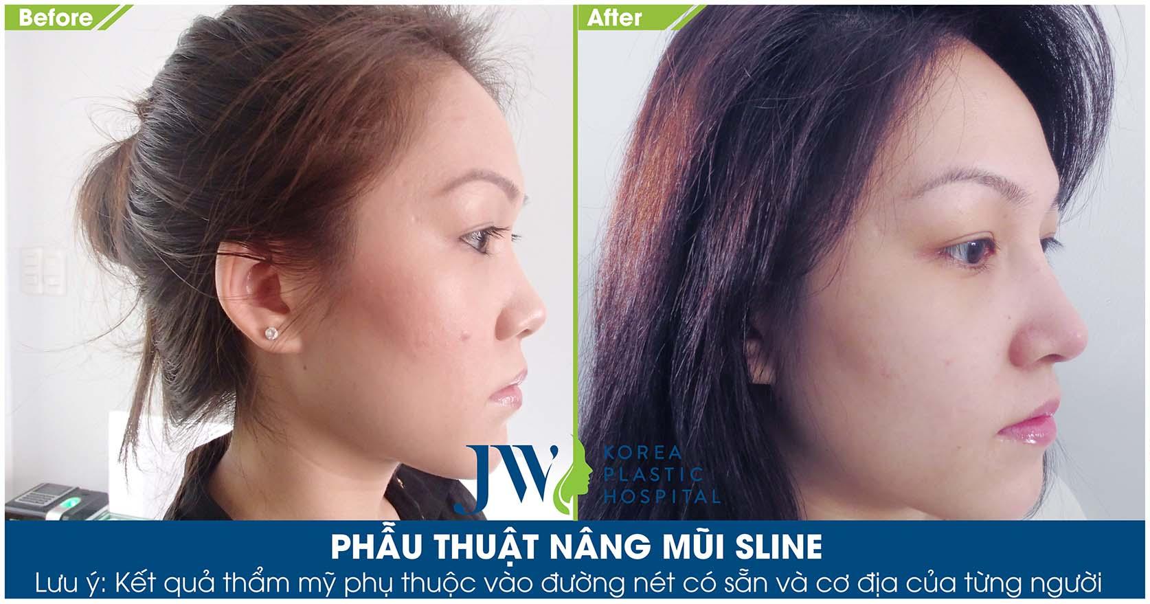 khắc phục tình trạng nâng mũi bị tụt sụn