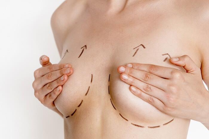 Cách nâng ngực chảy xệ không cần phẫu thuật - 272428
