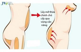 Nâng ngực xong có đau không