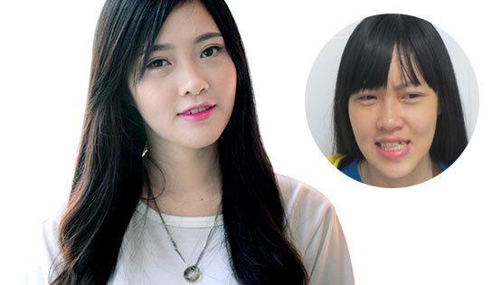 Hồng Anh - Phẫu thuật hàm móm + Niềng răng