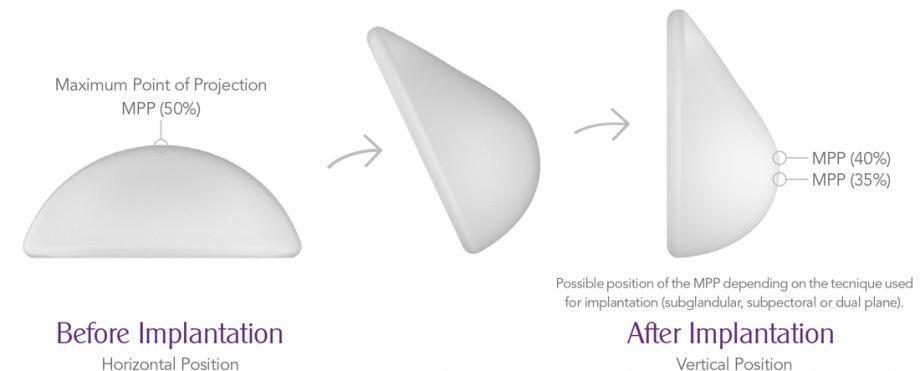 Túi ngực được cấu tạo đặc biệt dạng bán nửa mang lại đến vẻ đẹp tự nhiên sau khi thẩm mỹ.