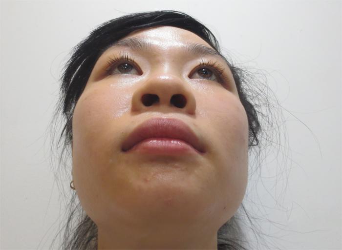 Sóng mũi thấp, đầu mũi to, kích thước và hình dáng của 2 lỗ mũi không đều nhau khiến cấu trúc mũi có phần hơi lệch là nỗi ám ảnh của tôi nhiều năm qua
