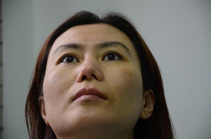 Bệnh viện nào có chuyên khoa tái phẫu thuật mũi