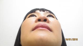 nâng mũi bằng phương pháp Sline sụn sườn