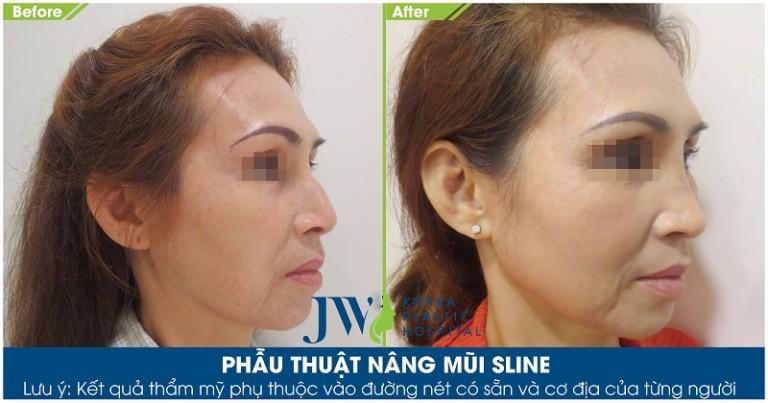 Sửa mũi bị hỏng do tiêm silicon tại JW