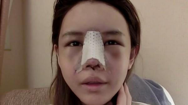 chuyên khoa tái thẩm mỹ mũi chuẩn Hàn