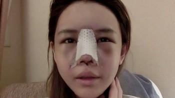 tái phẫu thuật mũi