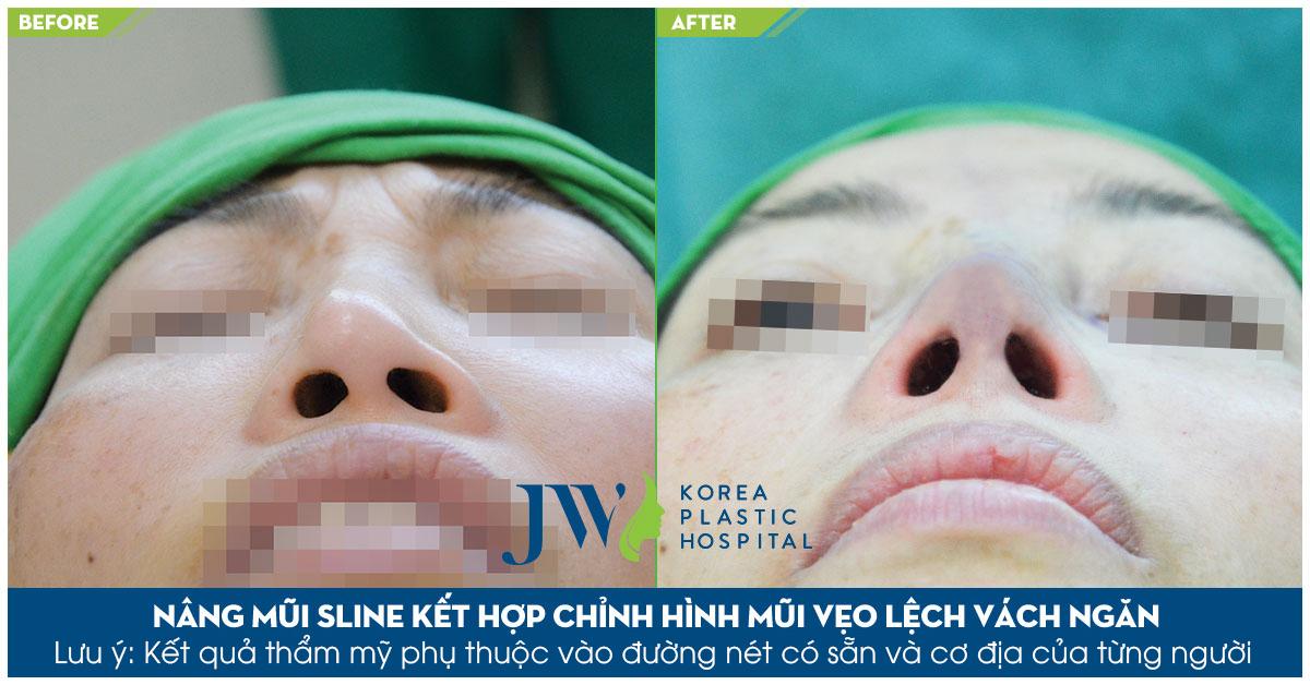 chuyên khoa tái thẩm mỹ mũi uy tín
