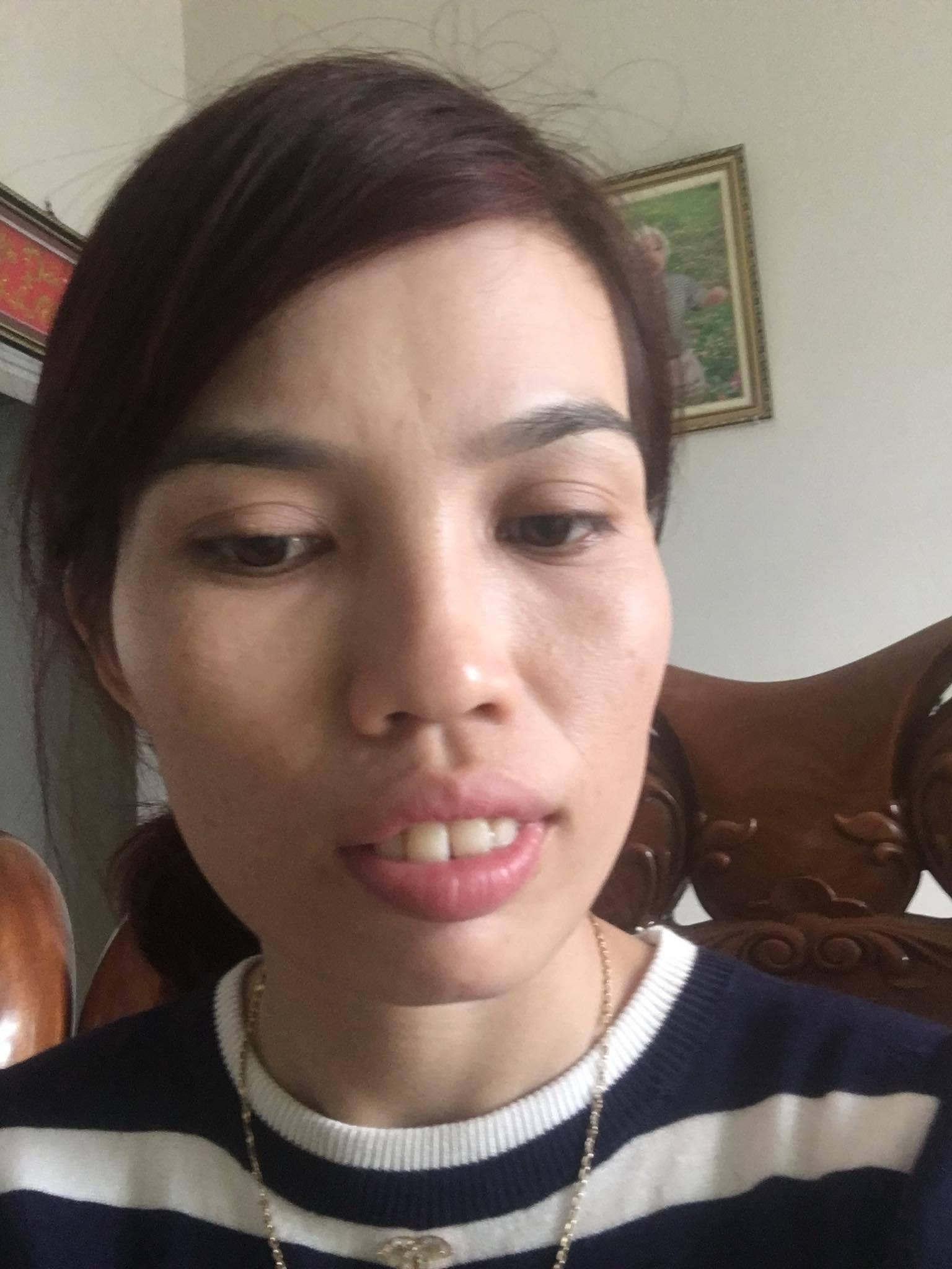 Khuôn mặt chị Như khi chưa phẫu thuật