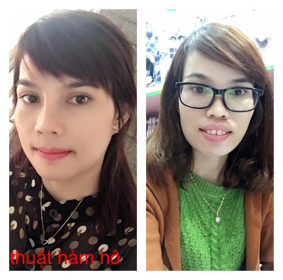 Khuôn mặt hoàn toàn mới mẻ của chị Như sau khi phẫu thuật hàm hô