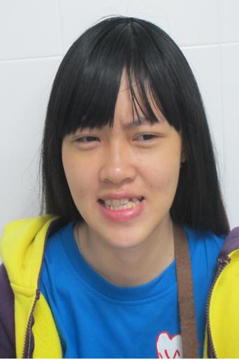 Hồng Anh có khuôn mặt lệch và hàm răng lộn xộn khiến cô từ người hoạt bát, dễ thương thành người tự kỷ, trầm cảm
