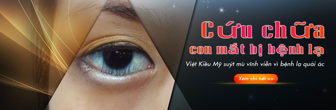 1: Banner mắt