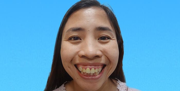 Từ bé chị Trà luôn mơ ước sẽ được cải thiện khiếm khuyết hàm mặt của mình