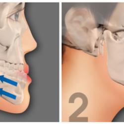 Phẫu thuật hàm móm và những điều mà bạn chưa biết!