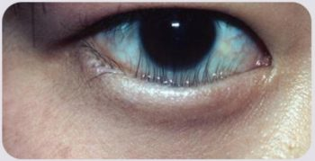 Lông mi dưới bệnh nhân mọc chọc thẳng vào mắt. JW Hàn Quốc