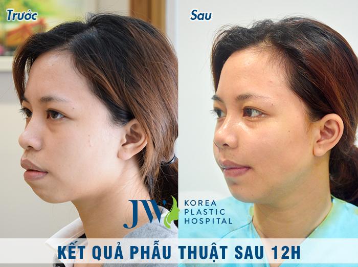 Hằng đã được điều trị phẫu thuật hàm hô miễn phí tại JW, kết quả thay đổi rõ rệt, khiến cô vui mừng khôn xiết. Đây là hình ảnh sau phẫu thuật 12 giờ của Hằng
