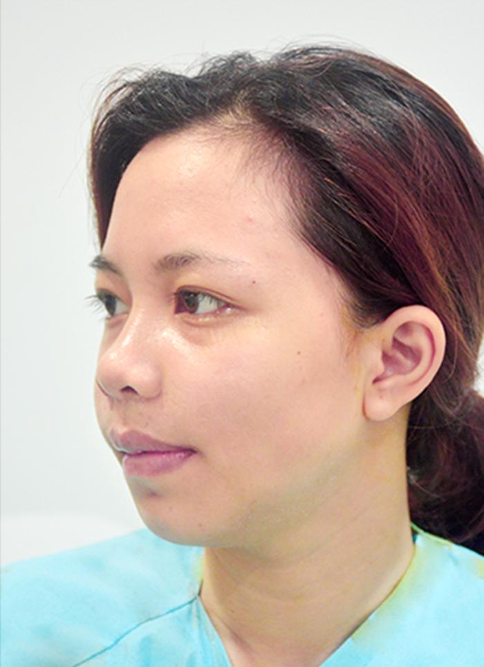 Hình ảnh Trần Thanh Hằng luôn ám ảnh mặc cảm về ngoại hình của mình