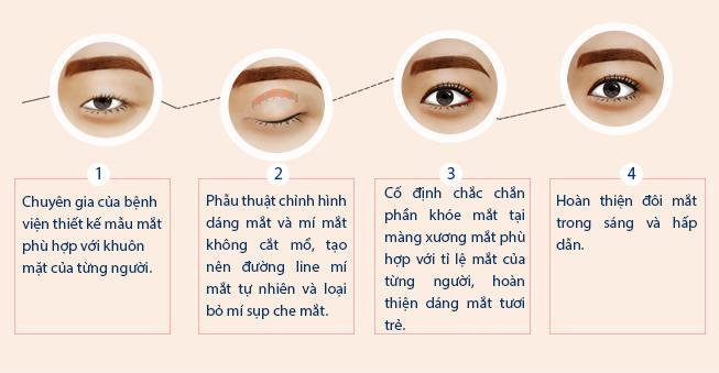 Thẩm mỹ mắt Circle eye - Ảnh 4