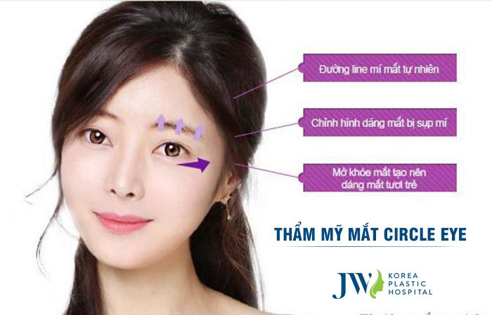 Thẩm mỹ mắt Circle eye - Ảnh 3