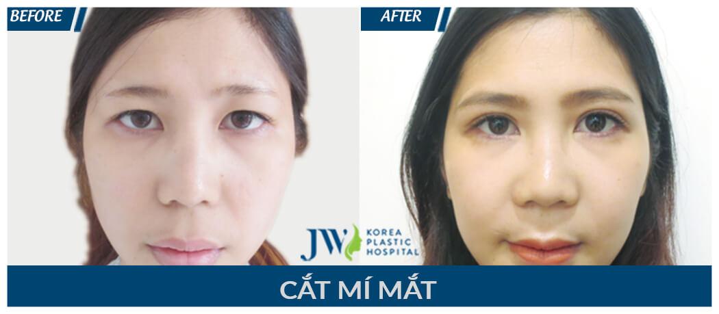 Thẩm mỹ mắt đẹp với chuyên gia tại bệnh viện hàng đầu Việt Nam-2