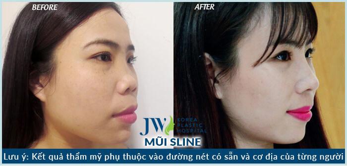 Hình ảnh khách hàng sau khi nâng mũi s line