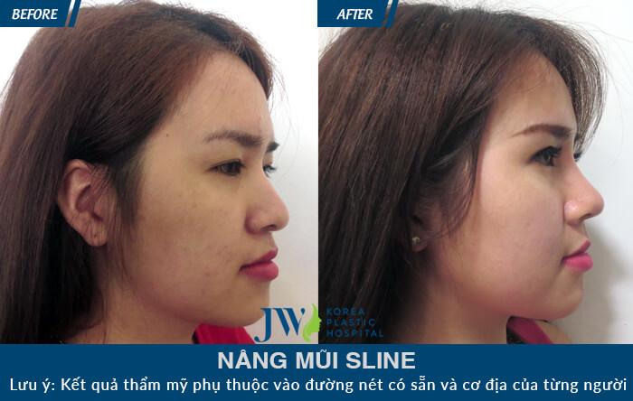 Hình ảnh khách hàng sau khi nâng mũi s line - hình 2