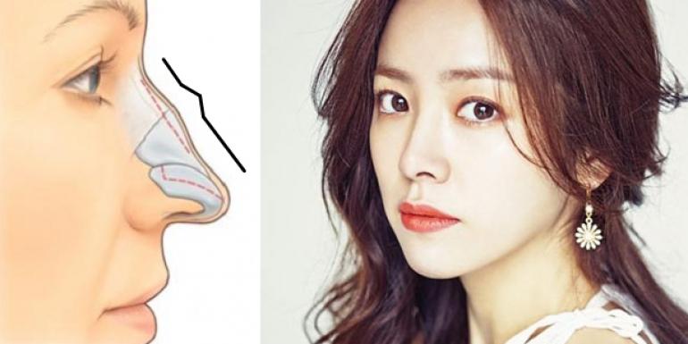 Sửa mũi hỏng hiệu quả với phương pháp thẩm mỹ chuẩn Hàn