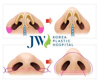 Hình ảnh mô phổng phẫu thuật thu gọn cánh mũi