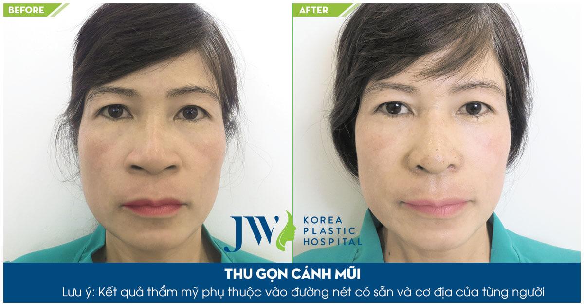 Hình ảnh khách hàng trước và sau khi thu gọn cánh mũi tại JW