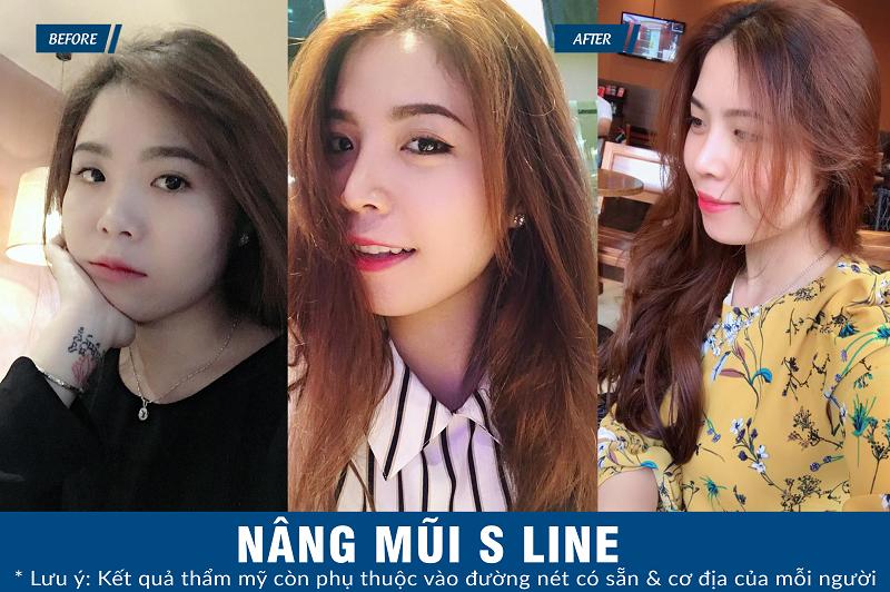 dáng mũi S line chuẩn Hàn