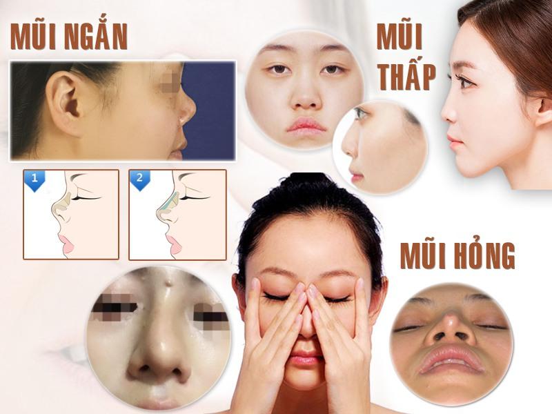 dấu hiệu tụt sụn mũi