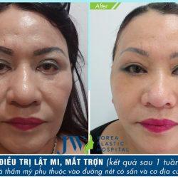 """Hành trình chữa lật mi """"khó khăn""""của người phụ nữ gốc Việt"""