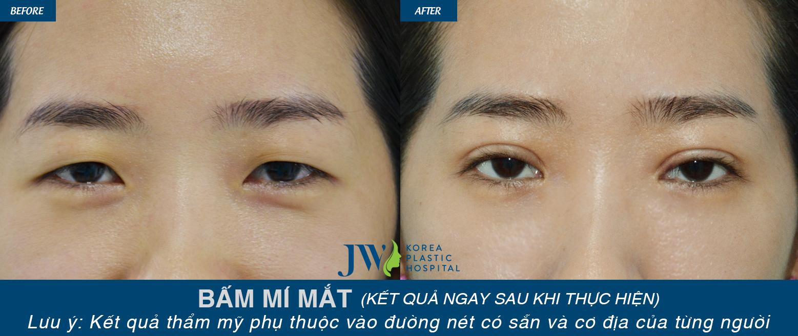 Nhấn mí mắt có hại không
