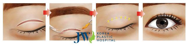 cách trị sẹo sau cắt mí mắt