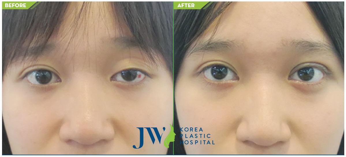kết quả sau khi phẫu thuật mắt to