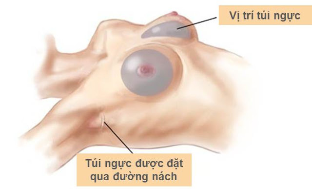 Nâng ngực nội soi qua đường nách