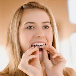 Phẫu thuật răng vẩu áp dụng trong trường hợp nào?
