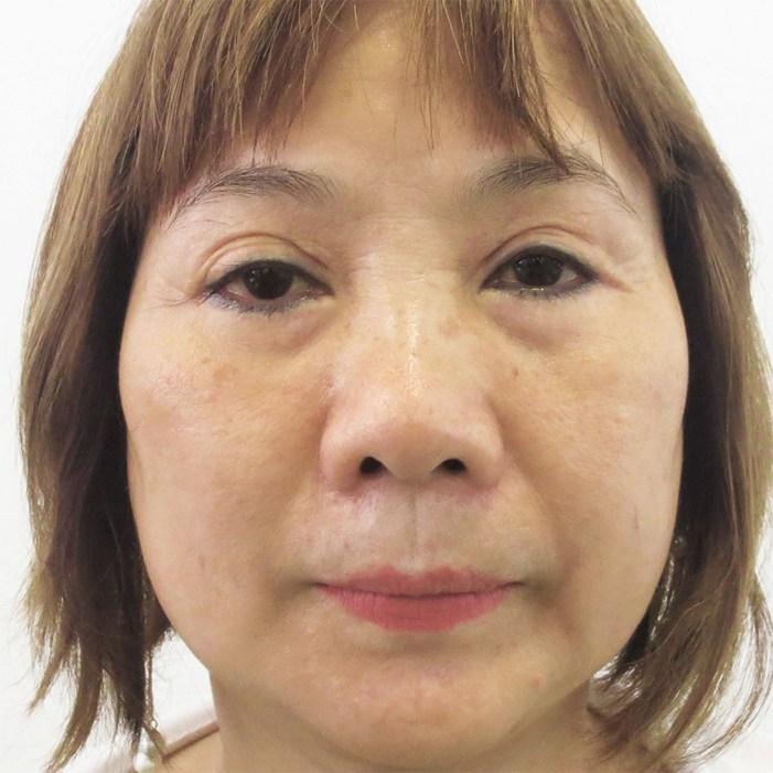 Tái phẫu thuật mắt - Bí quyết cho đôi mắt có hồn ấn tượng- Ảnh 1