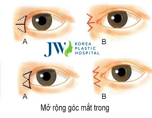 phương pháp mở rộng khóe mắt