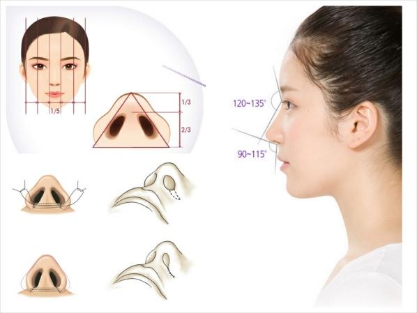 5 lưu ý quan trọng khi phẫu thuật cắt cánh mũi - Ảnh 1