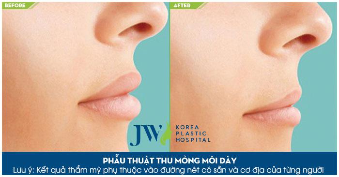 phẫu thuật Cắt môi dày